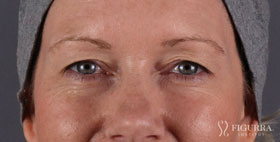 blepharoplasty-before