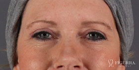 blepharoplasty-after