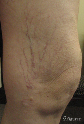 leg-veins-1-before