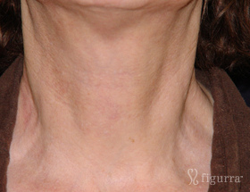 neck-rejuvenation-after